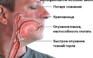 Анафилактоидная реакция от укуса ядовитых насекомых проявляется