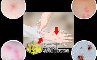 Как выглядит укус клопа на теле человека