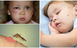 Глаз опух после укуса комара