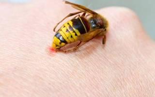 После укуса осы рука опухла
