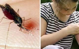 Неотложная помощь при укусе насекомого пчела