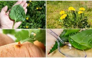 Какие существуют способы оказания помощи при укусах жалящих насекомых