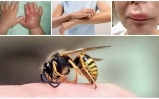 Что делать при укусе осы ребенка